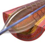 Stenting della stenosi