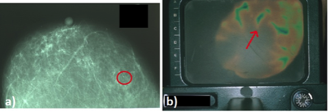 confronto tra mammografia e immagine angiotermografica