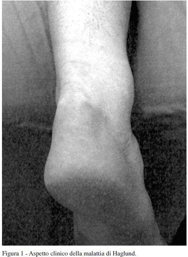 Aspetto clinico della malattia di Haglund - Coviello