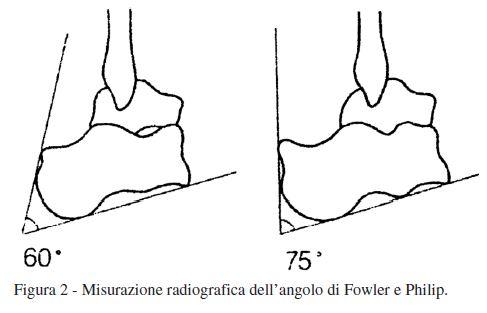 Misurazione radiografica dell'angolo di Fowler e Philip