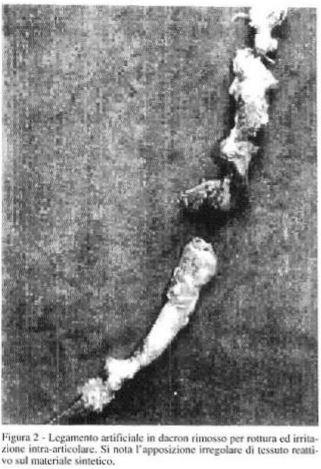 Legamento artificiale in dacron